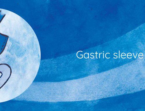 Gastric sleeve Explained