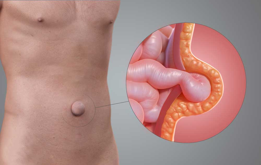 umbilical hernia in adults
